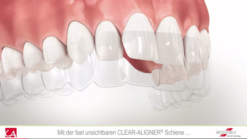 Info-Video zum Clear-Aligner Schienensystem